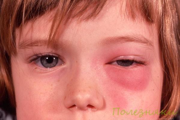 воспаление и сдавливание тройничного нерва