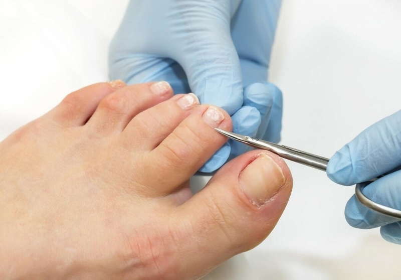 Как легко размягчить и отстричь жесткие утолщенные ногти на ногах